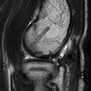 術後MRI(術後8か月):骨軟骨の安定化を認める