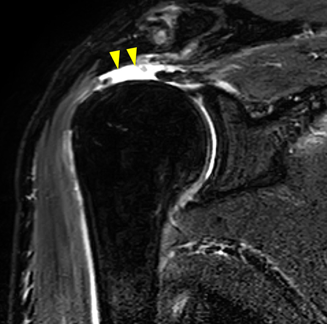肩腱板断裂(術前):腱が完全に断裂しています