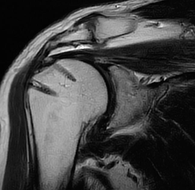 術後:関節鏡手術により修復された腱板(術前と同一症例)